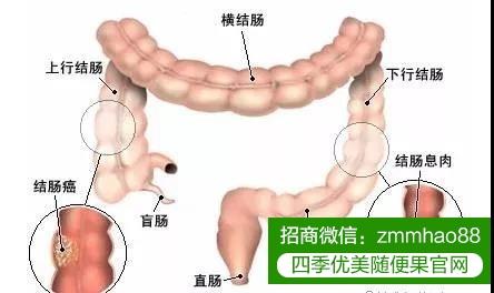 肠道的那些事你知多少?你需要警惕这些症状!