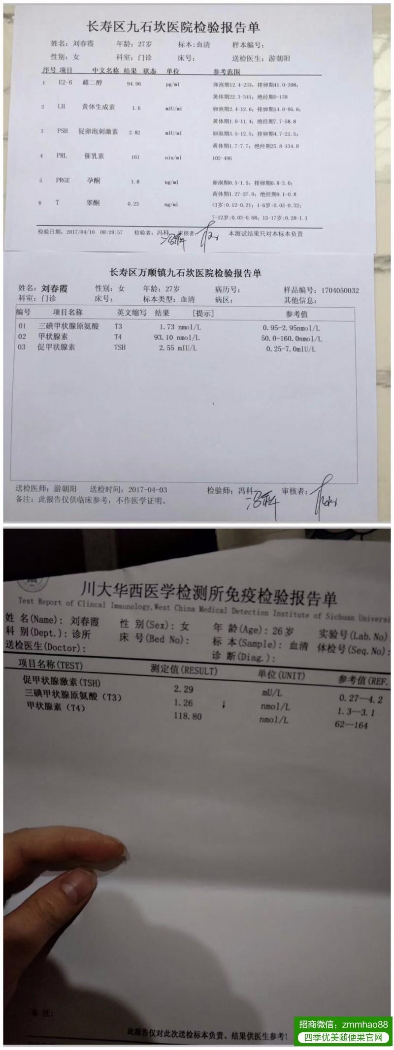 春霞医生调理多囊卵巢综合症案例,喜得贵子!